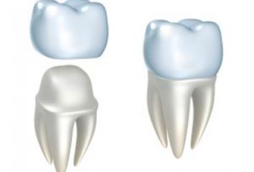 Couronne dentaire artifielle