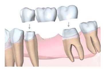 Pont/Bridge dentaire