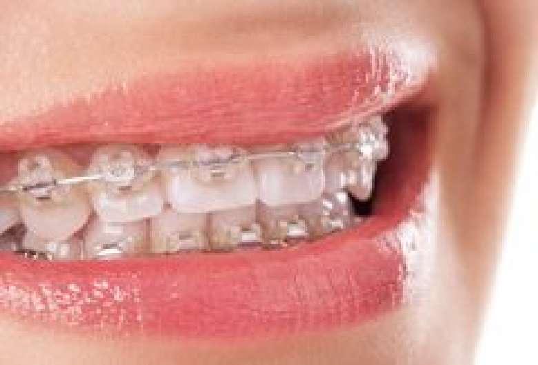 Qu'est-ce que l'orhodontie Genève