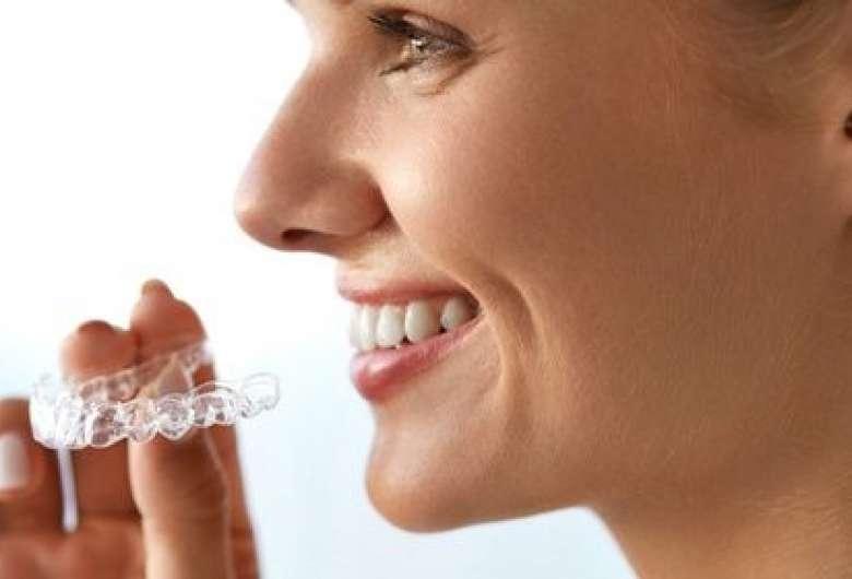 Appareils orthodontiques adultes Genève