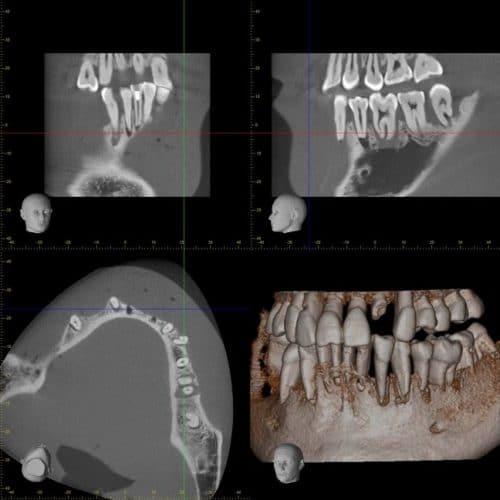Radiographie atteinte parodontale